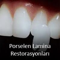 Porselen Lamina Restorasyonlar
