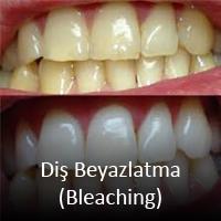 dis-beyazlatma-bleaching