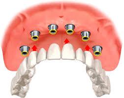 implant izmir türkiye