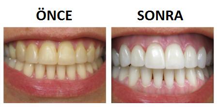 Hatay Karabağlar Diş Beyazlatma