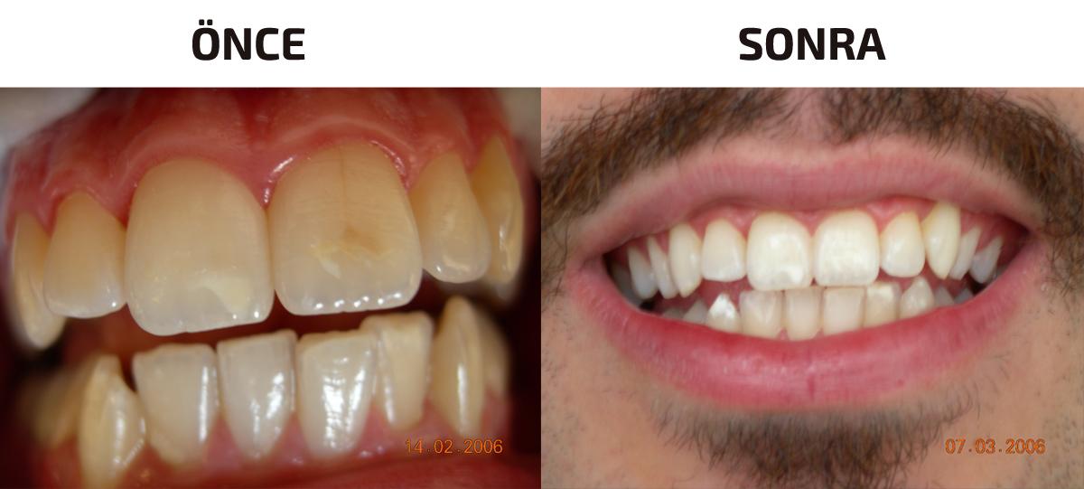 Diş Beyazlatma Üçyol Hatay