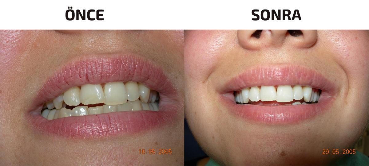 Diş Beyazlatma İzmir