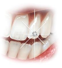 Diş Pırlantası İzmir